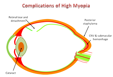 Complications of High Myopia