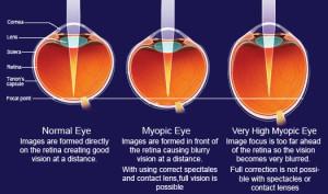 myopia1