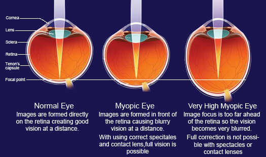 Treatment For Low Myopia India